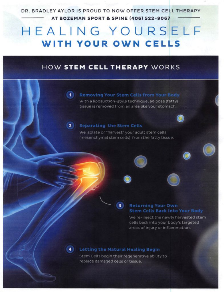Heal yourself with stem cells | Bozeman Sport & Spine